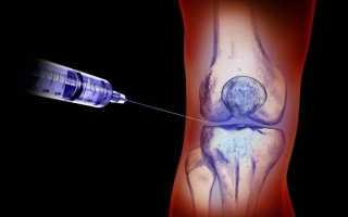 Недостаток суставной синовиальной жидкости