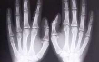 Что показывает рентген кисти рук