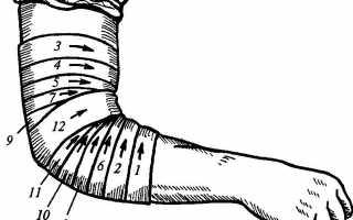Разнообразные повязки и бандажи при переломах рук