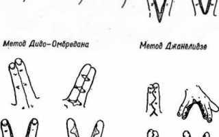 Прибылые пальцы у собак и щенков на задних лапах