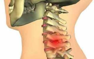 Как лечить грыжу шейного отдела позвоночника