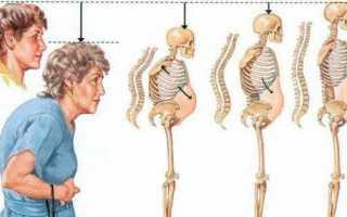 Диагностика и лечение дорсалгии грудного отдела позвоночника