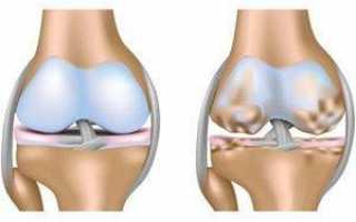 Характеристика и важные особенности артроза коленного сустава 2 степени