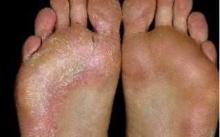 Боль в ногах по утрам: причины, профилактика