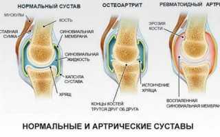 Почему опухают пальцы на ногах