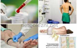 Болит подушечка стопы: как лечить, к какому врачу обращаться