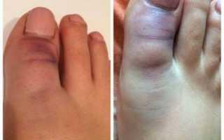 Ушиб пальца ноге почернел