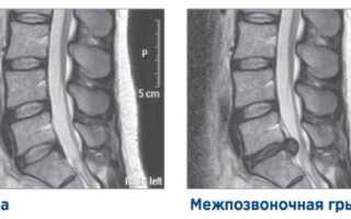 Грыжа грудного отдела позвоночника рентген