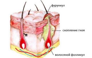 Как убрать шишку на шее сзади в области позвоночника