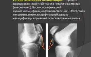 Оссификаты тазобедренного сустава лечение