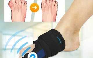 Симптомы вывиха коленного сустава и методы восстановления