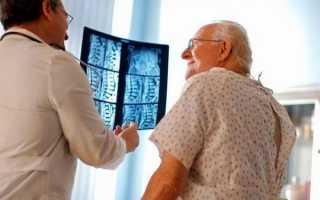 Спондилоартроз 2 степени поясничного отдела позвоночника: лечение