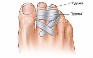 Причины, диагностика и лечение перелома большого пальца на ноге