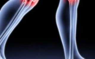 Хруст коленного сустава лечение народными средствами