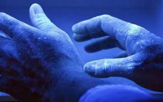 Грибок ногтей и кожи рук: причины появления, лечение