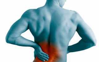Что делать, если болят мышцы спины: возможные причины и лечение. почему болят мышцы спины и как решить эту проблему: советы врача