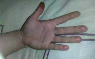 Боль в кончиках пальцев левой руки