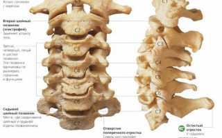 Нестабильность шейного отдела позвоночника: симптомы и лечение