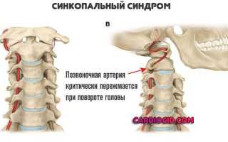 Шейная артерия зажата симптомы