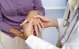 Ревматоидный артрит: симптомы, лечение, диагностика, стадии