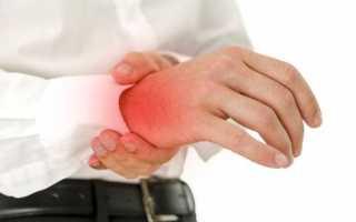 Как лечить артроз лучезапястного сустава
