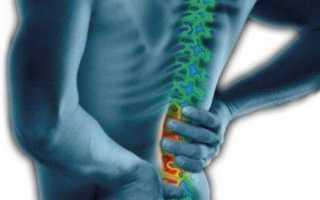 Что из себя представляет фасеточный болевой синдром и как его лечат