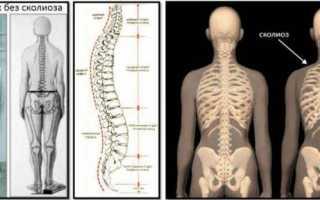 Последствия сколиоза: что будет если не лечить болезнь?