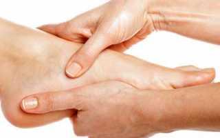 Шпоры на ногах: симптомы, причины и лечение