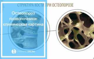 Лечение остеопороза поясничного, грудного, шейного отдела позвоночника
