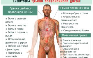Какой врач лечить грыжу позвоночника
