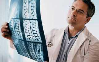 5 распространенных ортопедических заболеваний у детей