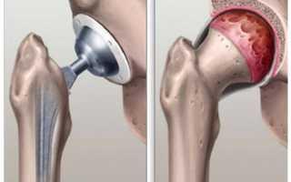 Что такое эндопротезирование тазобедренного сустава от: как проводится операция