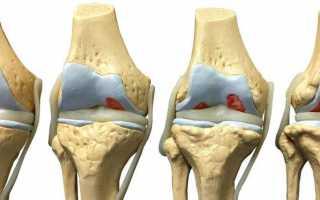 Операция на колене: показания к проведению, подготовка, варианты вмешательств, восстановление