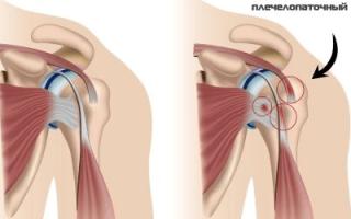 Узнаем все причины боли одновременно в шее и плечах