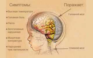 Что такое менингит, симптомы и лечение