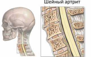 Артрит шейного отдела позвоночника лечение