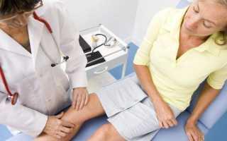 Что такое полиартроз суставов