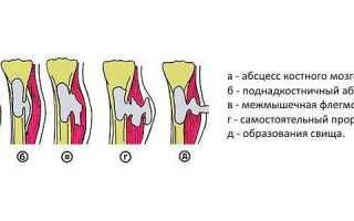 Инфекции позвоночника: диагностика и лечение