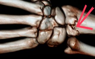 Сосуды кисти анатомия