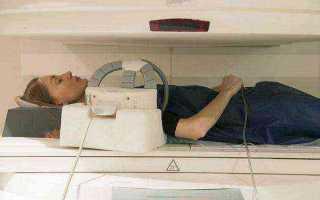 Миозит плеча причины, симптомы и методы лечения