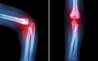 Физиопроцедуры при воспалении суставов