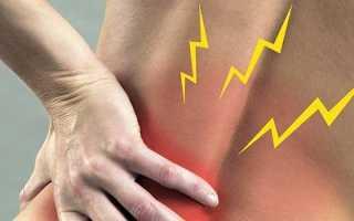 Боль в спине и пояснице