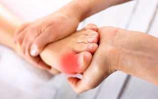 Суставы стопы: лечение и особенности заболеваний ног