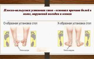 Что такое плоско-вальгусная стопа у ребенка и как ее лечить