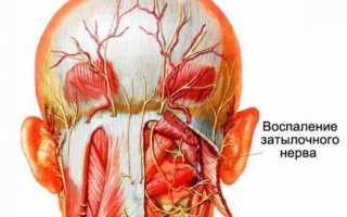 Неврит затылочного нерва
