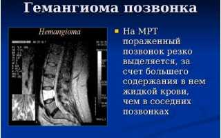 Как проявляется и чем опасна гемангиома позвоночника? симптомы, лечение и фото