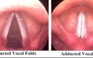 Как можно вылечить несмыкание голосовых связок