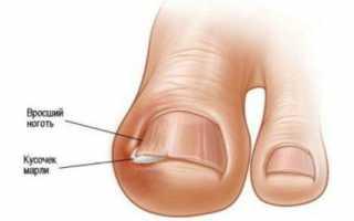 Болит сустав большого пальца на ноге: причины и лечение