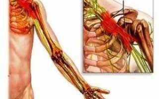 Плексит локтевого сустава лечение