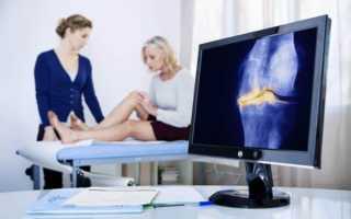 Гонартроз коленного сустава 1 и 2 степени: его симптомы и лечение